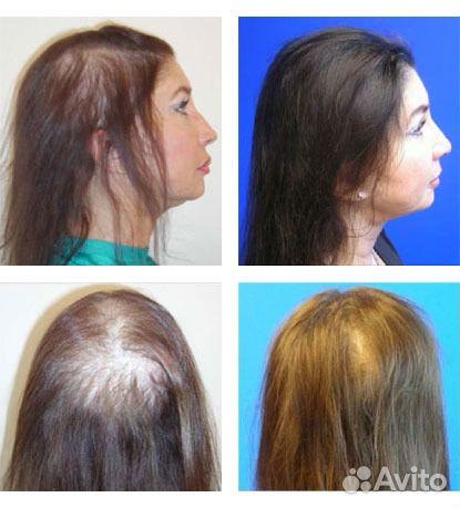 Миноксидил для волос женщин купить